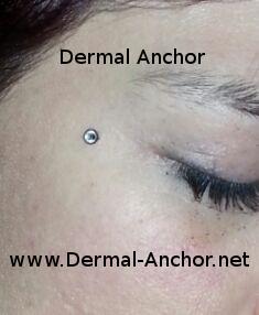 Dermal Anchor